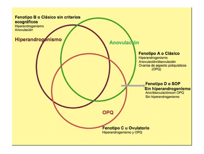 Review de PCOS para tratar el Síndrome de Ovarios Poliquísticos 1